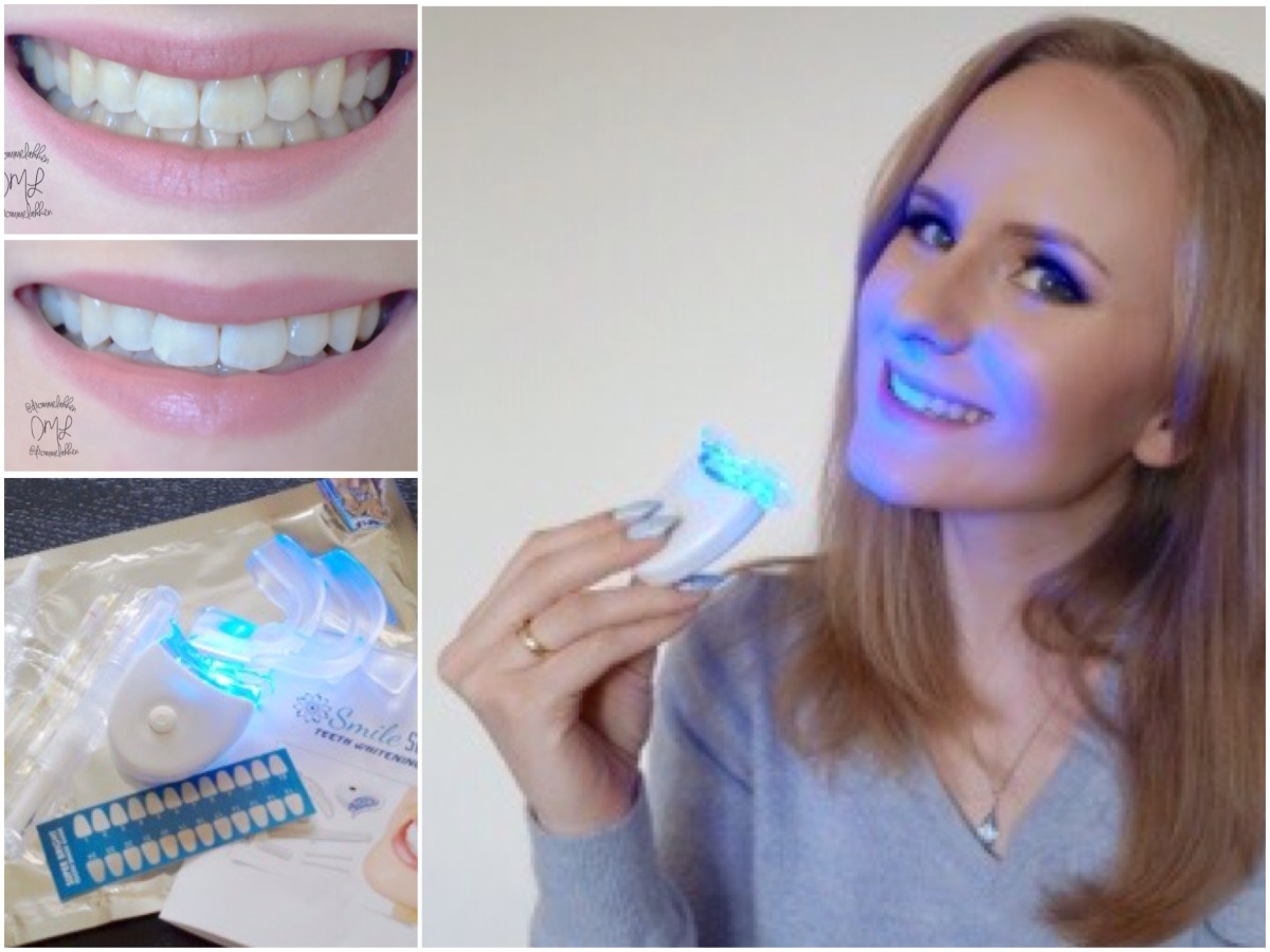 Tooth Whitening Review + super discount code for you!